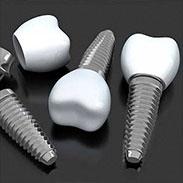 Dental Implants in Farmington, CT